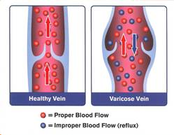 varicose vein diagram